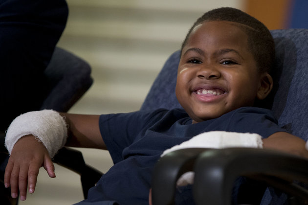 This Is The First Child Ever To Receive Double Hand Transplant