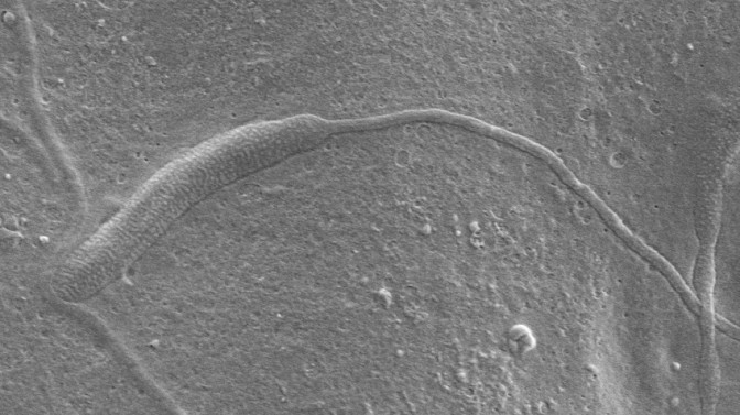 50-Million-Year-Old Sperm Found in Antarctica