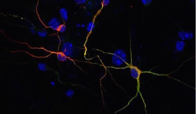 Scientists Turn Skin Cells into Brain Cells, Using Alzheimers Patients