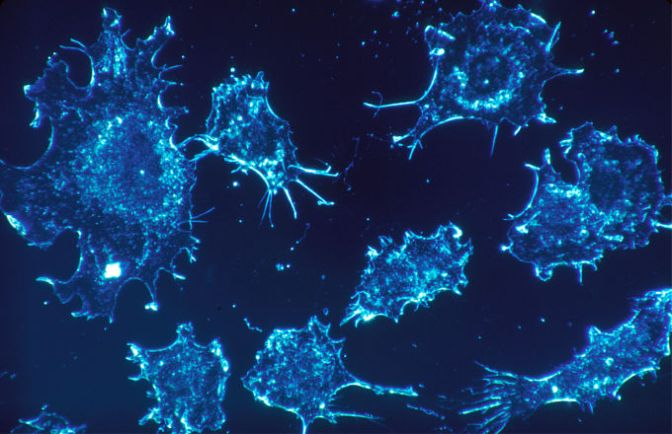 Scientists Discover How to Successfully Turn Cancer Cells Back to Normal