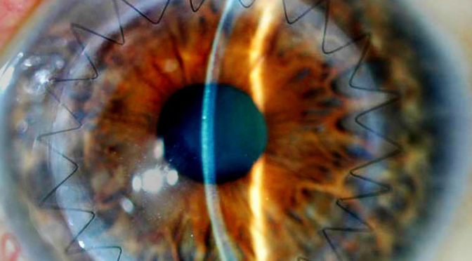 How Neurosurgeons Can Now Look at Your Brain Through Your Eyes