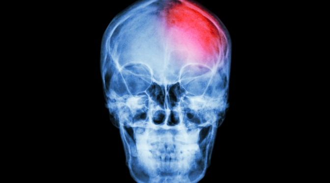 Concussions: Signs, Symptoms & Treatment