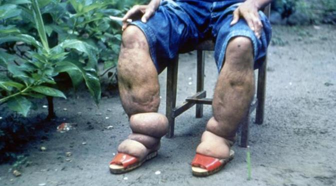 Elephantiasis: What Causes This Strange Condition?