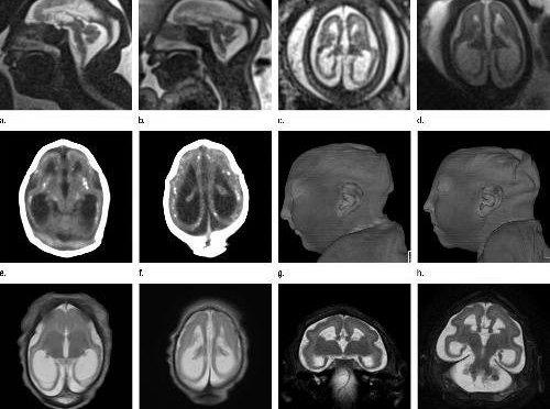 New Images Show How Zika Devastates A Fetus' Brain