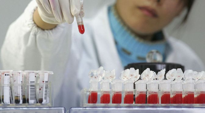 British Man May Be the First Person Cured of HIV
