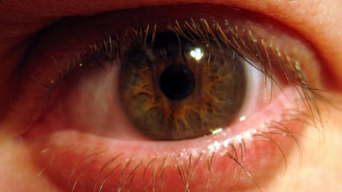 Your Eyeballs May Be Covered in Disease-Fighting Bacteria