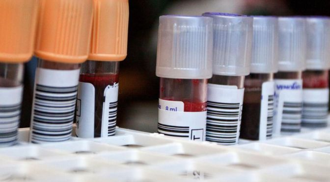 FDA Approves Blood Test That Can Detect Concussions