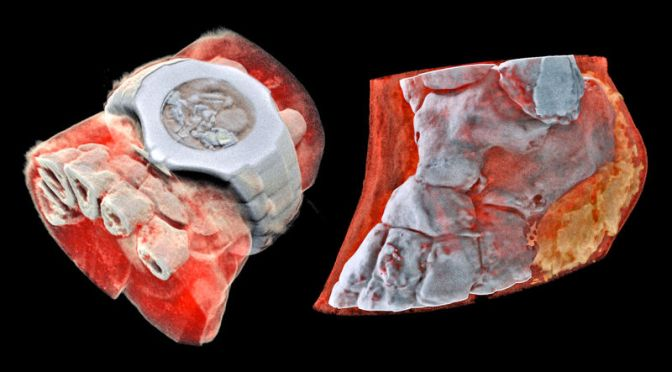 The World's First Full-Color, 3D X-rays Are Freaking Me Out