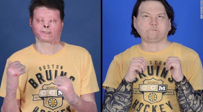 New Jersey Man Receives World's First Successful Face and Double Hand Transplant